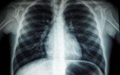 Røntgenteknologi – Det bruges den til i dag